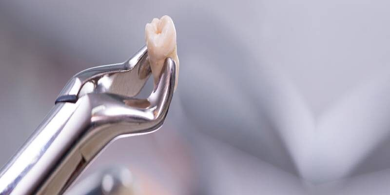 Tooth-Extractions-Banner